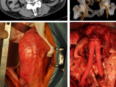 腹部大動脈人工血管置換術