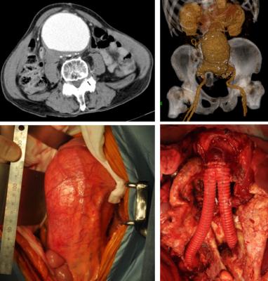 腹部大動脈瘤人工血管置換術