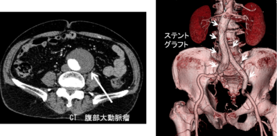 腹部大動脈瘤、ステント内挿術