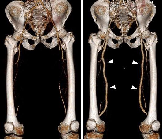 両側浅大腿動脈閉塞、およびバイパス術後の3DCT画像
